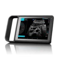 Ultrasonido SonoSite iViz